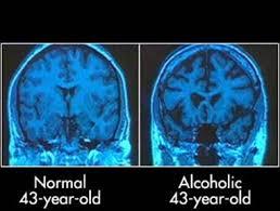 wernicke korsakoff, nöropsikoloji, beyin, psikoloji, korsakoff sendromu, konfabülasyon, açlık grevi